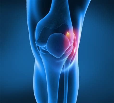 Medial Collateral Ligament (MCL) Sprain - Peninsula Sports