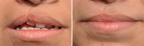 Plastic Surgery Case Study - Cleft Lip Revision with