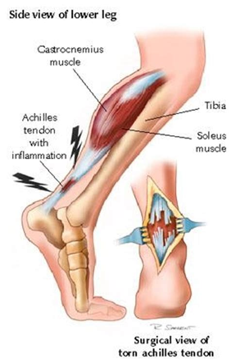 Achilles Tendon (Disorders and Injuries) - Premier Medical